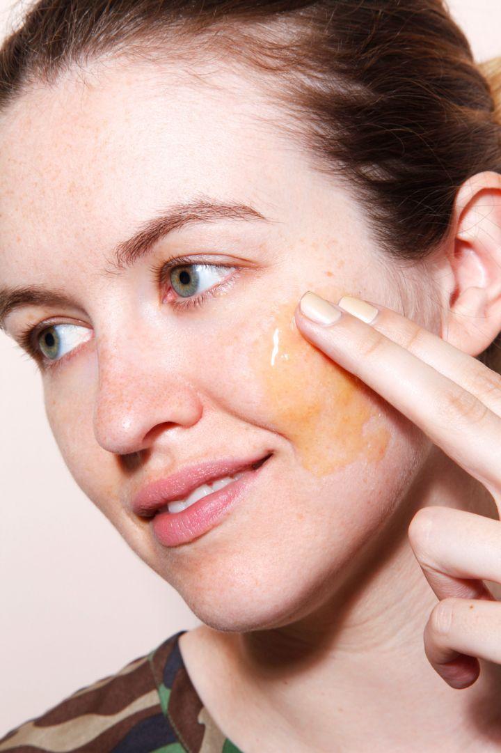 5 Cách trị mụn ẩn dưới da bằng nguyên liệu tự nhiên cực hiệu quả