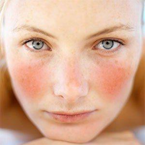 rửa mặt tránh được các bệnh về da