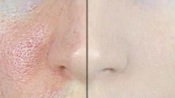cách sử dụng kem lót cho da mụn làm phẳng lỗ chân lông