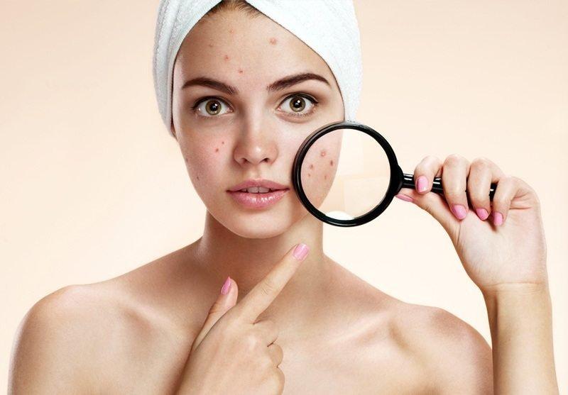 da mụn đừng nên tẩy lông mặt