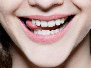 Men răng mỏng và dễ tê buốt liệu có tẩy trắng răng được không?