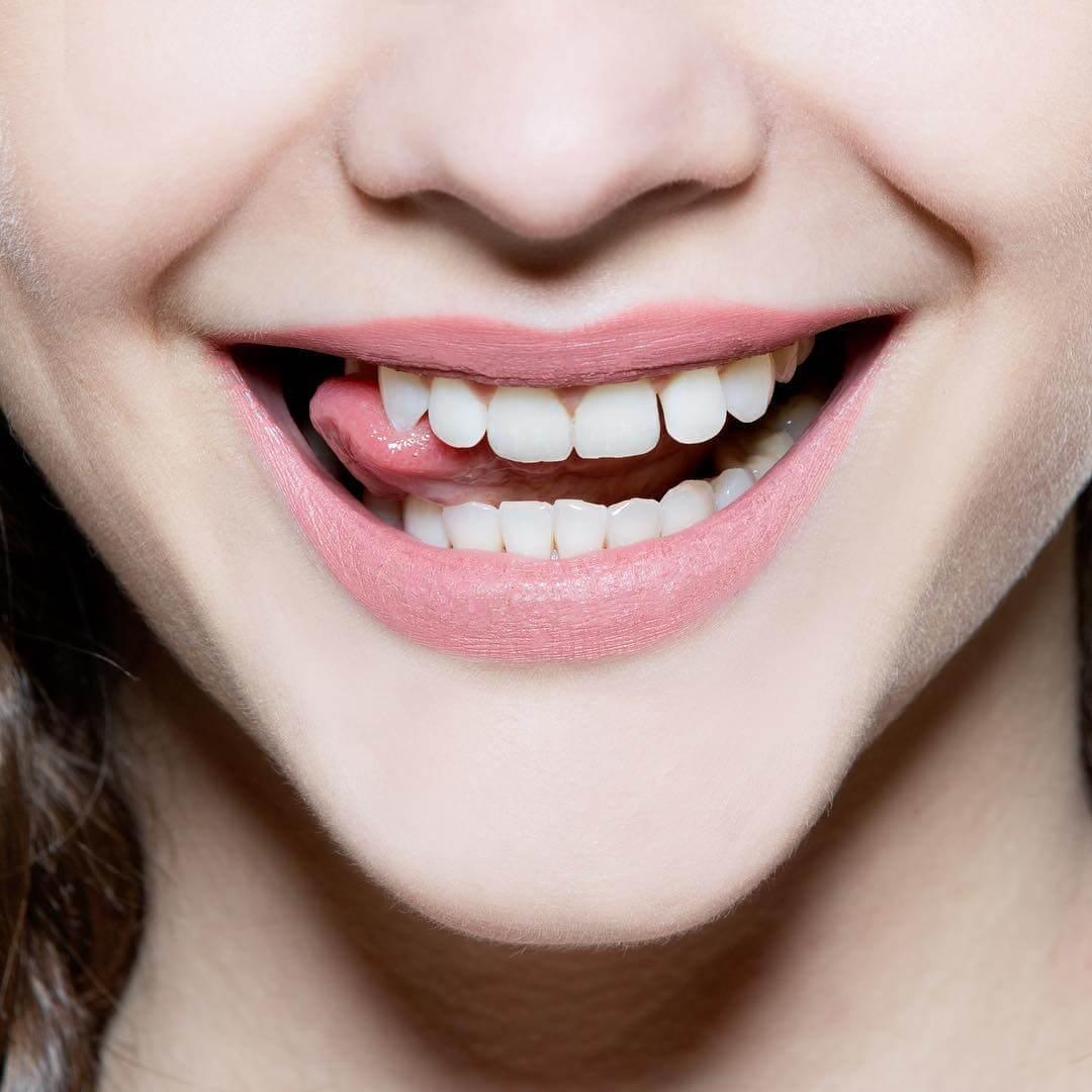 Tẩy trắng răng 1 lần bằng các phương pháp tự nhiên – Bao lâu 1 lần là tốt nhất?