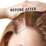 Dấu hiệu rụng tóc cho biết đã đến lúc bạn phải đi chữa trị