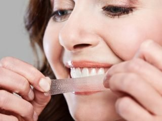 """3 lí do bạn nên chọn miếng dán trắng răng cho một hàm răng chuẩn """"celeb"""""""
