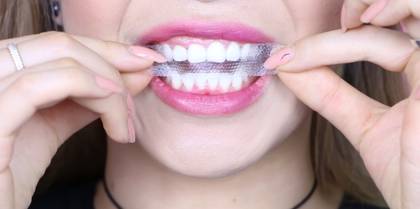miếng dán trắng răng