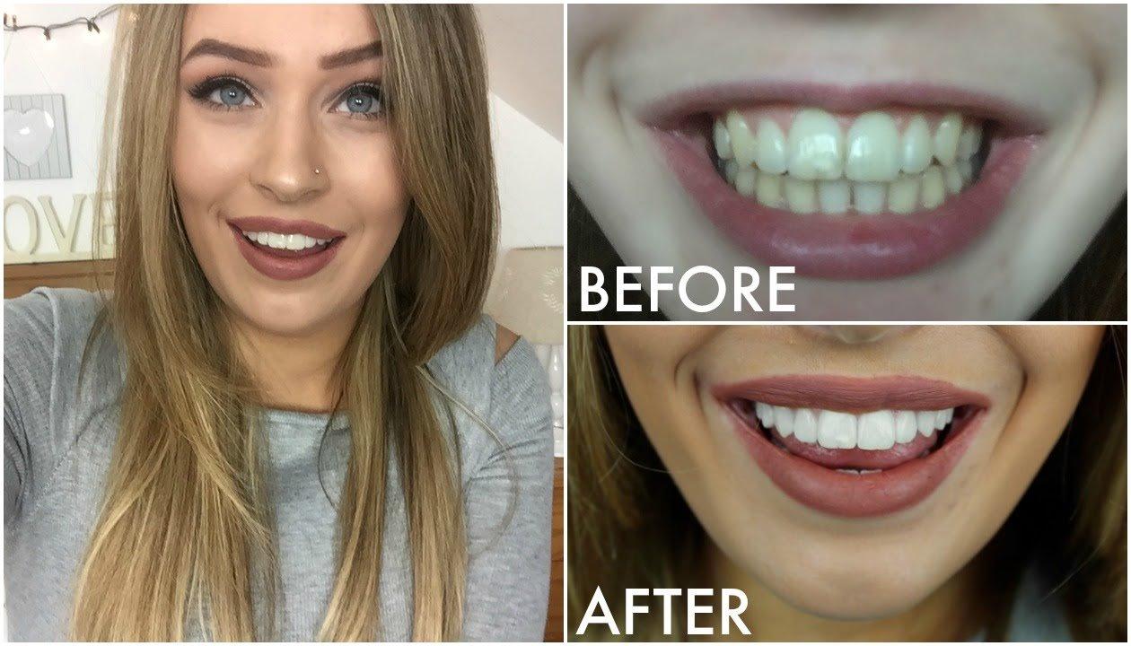 hiệu quả làm trắng răng