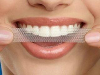 Top 2 miếng dán trắng răng được các beauty blogger Việt tin dùng