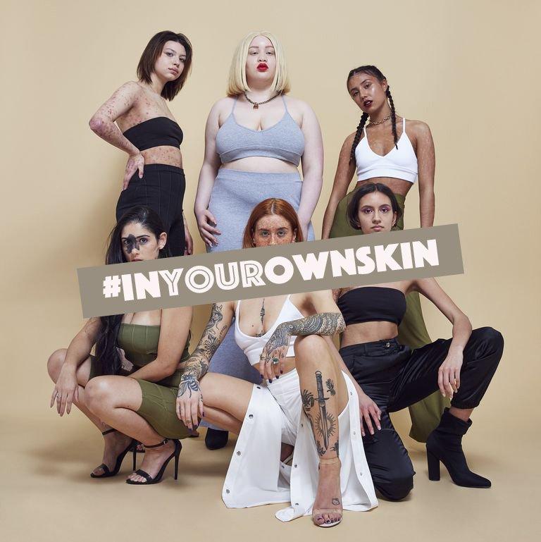 Chiến dịch mới của Missguided kêu gọi phái đẹp yêu quý sự không hoàn hảo của làn da mình