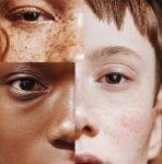 "4 Loại mặt nạ tự nhiên là ""thần dược"" cho làn da khô tróc vảy"