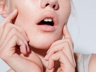 Nguyên nhân nào khiến tình trạng lỗ chân lông bị to?