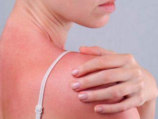Sun poisoning và những điều bạn cần biết ngay hôm nay!