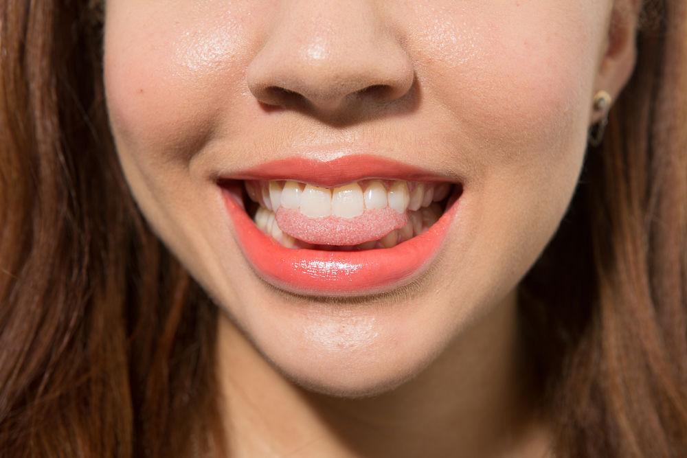 hàm răng trắng sáng