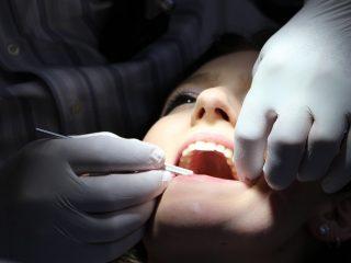 Bọc răng sứ đón năm mới và những điều cần biết
