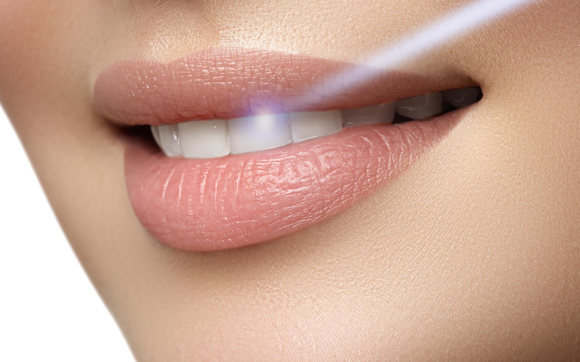 Tẩy trắng răng Laser Whitening là gì?