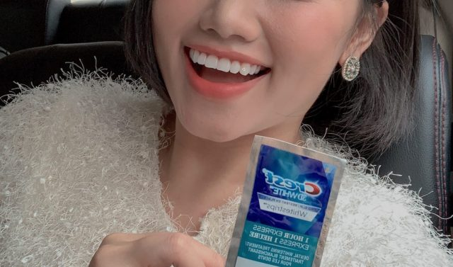 Tất tần tật những điều về miếng dán trắng răng mà bạn không nên bỏ lỡ