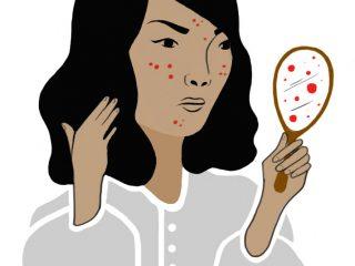 Hết hồn chưa? Đây là 7 nguyên nhân gây mụn cám tràn lan trên mặt bạn đấy!
