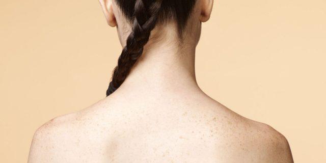 11 Cách trị mụn lưng tại nhà hiệu quả giúp bạn lấy lại vẻ gợi cảm