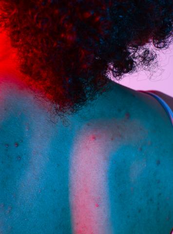 Nguyên khiến bạn nổi mụn lưng không kiểm soát và cách trị mụn lưng hiệu quả