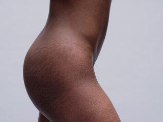 Thử áp dụng 4 phương pháp làm mờ vết rạn da này xem, biết đâu bất ngờ?