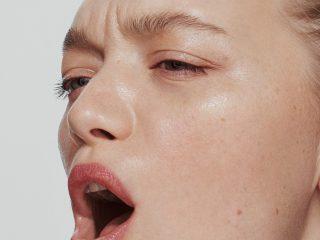 Chuyên gia da liễu muốn bạn biết gì về da nhạy cảm?