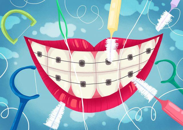 Niềng răng có phải là nguyên nhân gây hôi miệng?