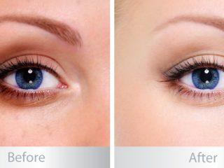 Bạn có thực sự cần dùng đến kem mắt?