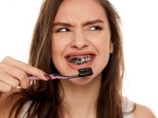 Than hoạt tính cũng là cách làm trắng răng bị vàng đấy