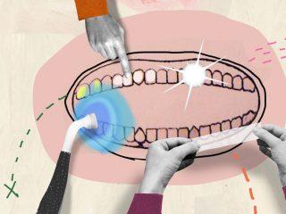 Làm thế nào để lấy lại hàm răng trắng sáng từng có?