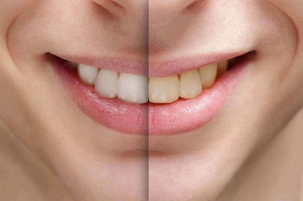 6 Lầm tưởng về cách làm trắng răng bạn cần biết