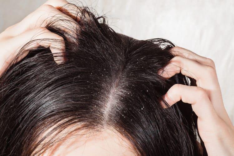gàu và da đầu khô