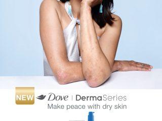 Liệu phụ nữ có thể tự tin với một làn da không hoàn hảo?