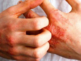 Dove Derma Series – giải pháp cho làn da mắc chứng chàm da sần sùi