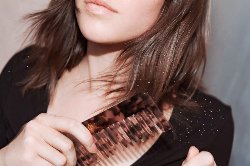 Tóc bị gàu thì có điều trị dứt điểm được không?
