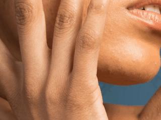 Chàm da ở vùng da mặt, phải làm sao đây?