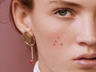 Da mặt bị khô ngay cả giữa mùa hè, bạn cần học ngay cách chữa trị đi thôi!