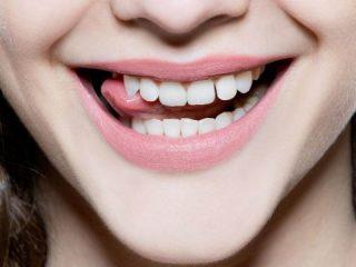 Có nên tự làm trắng răng tại nhà với Hydrogen Peroxide?