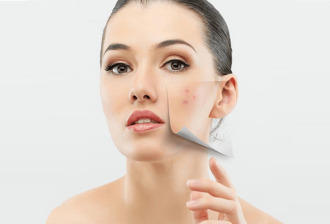 bí quyết trang điểm khi da bị mụn