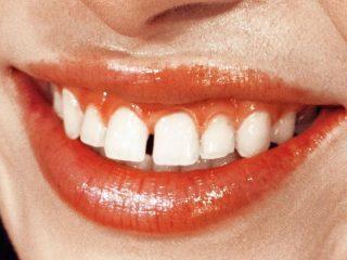 Bọc răng sứ – Lợi bất cập hại