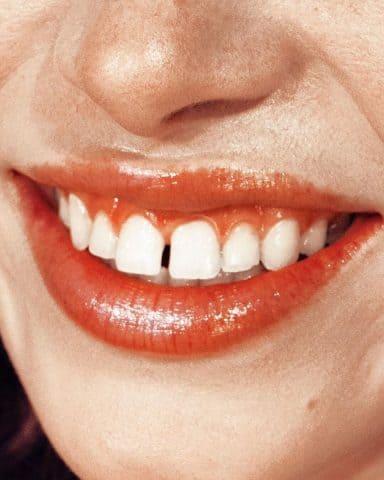 Bọc răng sứ để làm trắng răng – Lợi bất cập hại và những cách thay thế bạn có thể sử dụng