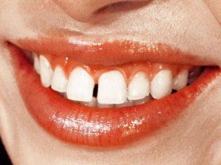 Chưa đến 1 phút đã có hàm răng sáng bóng, chắc khỏe thì chỉ có thể là do 6 tips này