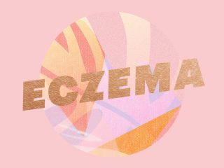 Tất-tần-tật những gì bạn cần biết về chứng eczema