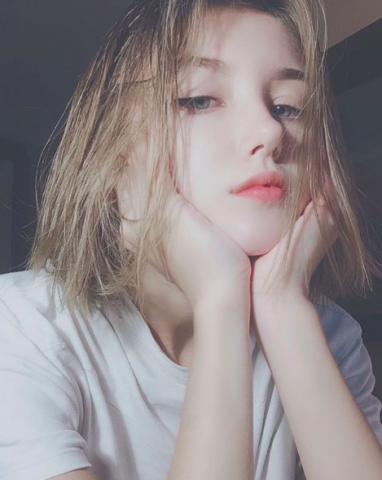 Rụng tóc ở tuổi teen có đáng lo?