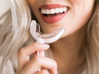 Trào lưu tẩy trắng răng bằng máy làm trắng hiện nay có thực sự an toàn và hiệu quả