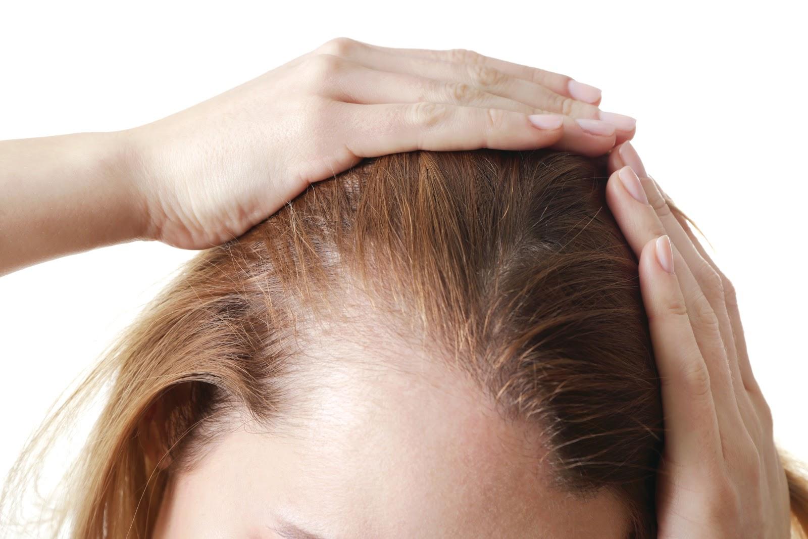 bệnh ảnh hưởng tới nang tóc