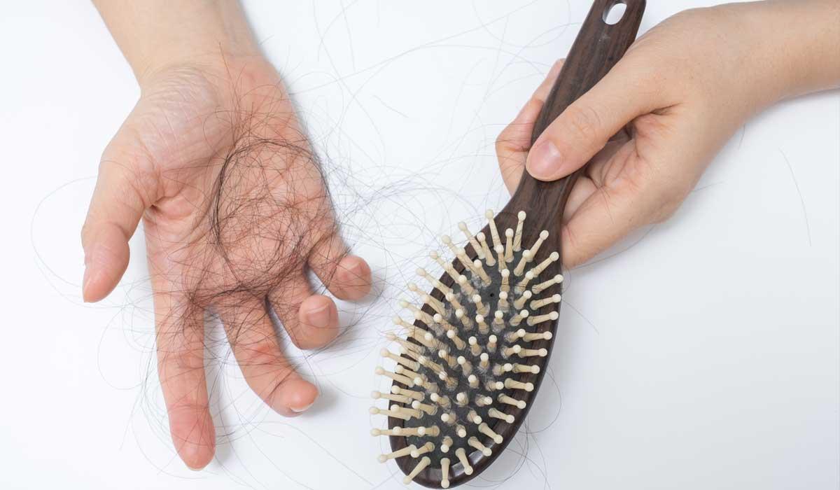 cấy tóc