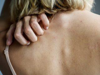 Bệnh vẩy nến và trầm cảm liệu có liên quan đến nhau?