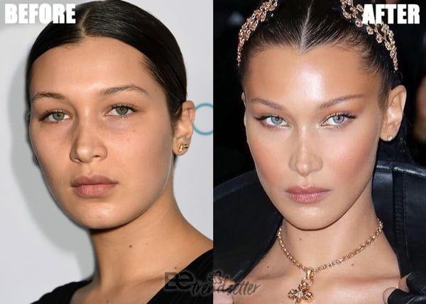 Kết quả hình ảnh cho bella hadid before and after