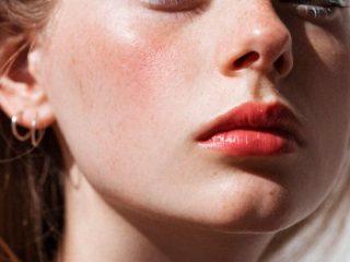 3 Loại sữa rửa mặt trắng da dịu nhẹ cho da nhạy cảm và da chàm