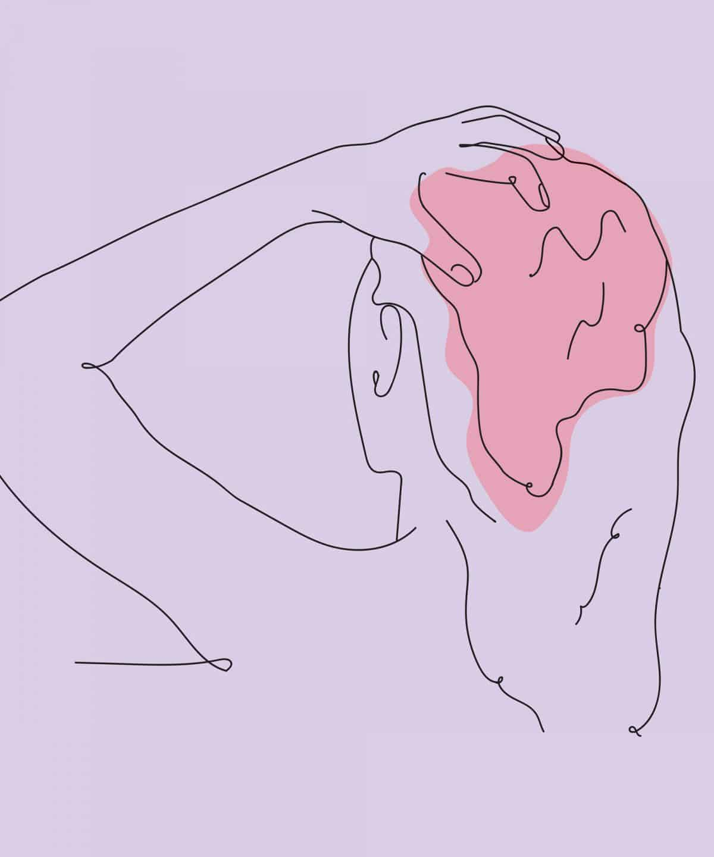 tóc rụng nhiều là bệnh gì