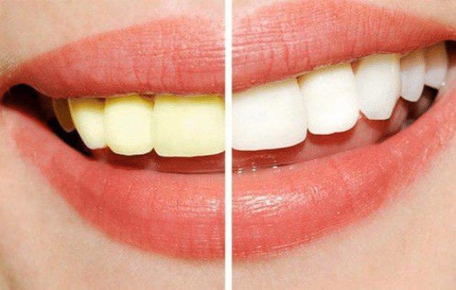 máy làm trắng răng